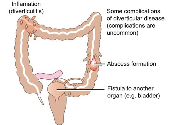 Complications of diverticular disease
