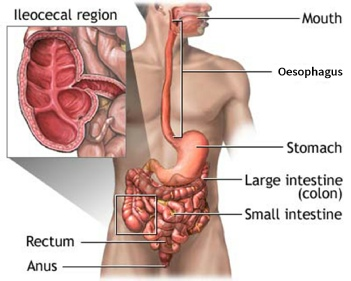 Areas of the gut affected by Crohn's disease