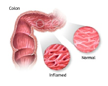 Inflamed and normal colon in IBD