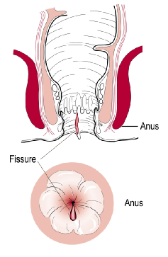 Anal Fissure Causes Symptoms Treatment Glasgow Colorectal Centre
