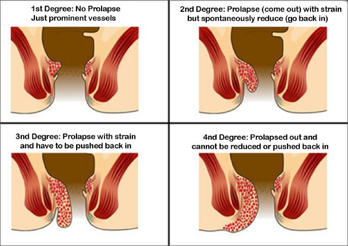 Haemorrhoids Piles Symptoms Advice Amp Treatment