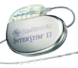 Medtronic Interstim for Sacral Nerve Stimulation for Faecal Incontinence